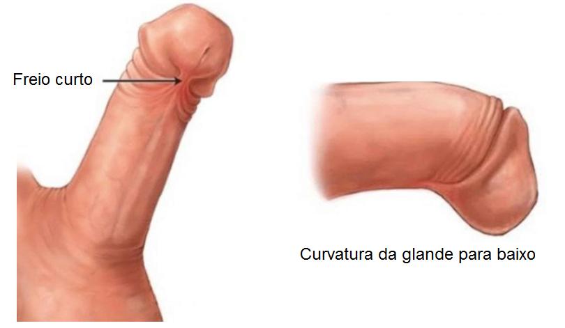 Imagem de freio curto e curvatura peniana