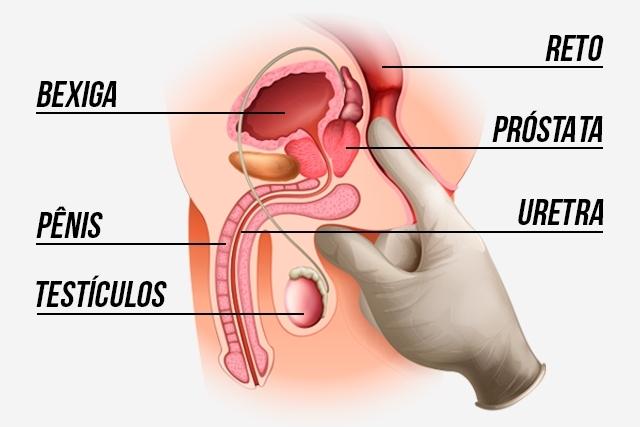 Abordagem da HBP - toque retal